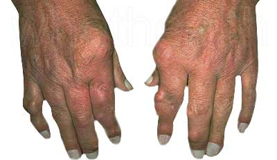 gout-hand