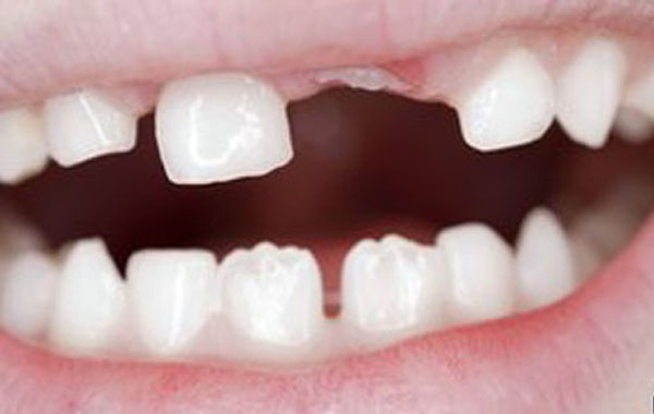 developed new teeth