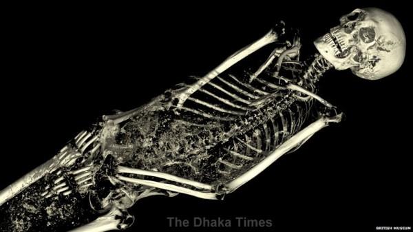 _74905435_skeleton