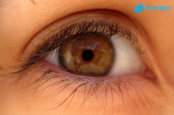 Eye coloration Mystery