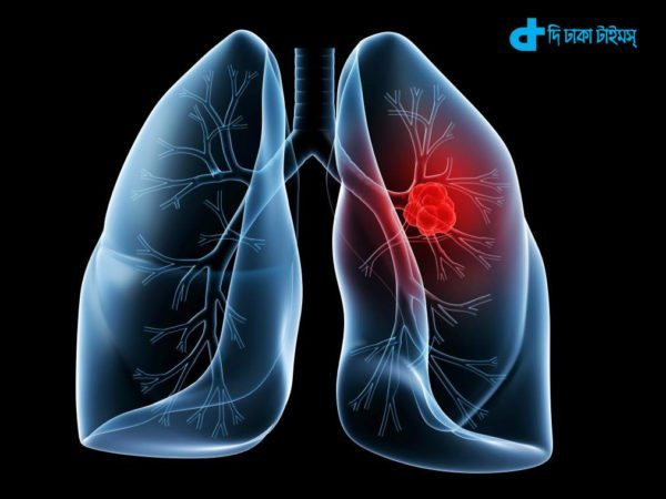 blood test can detect lung cancer-3