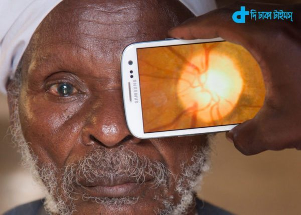 application of eye disease diagnosis