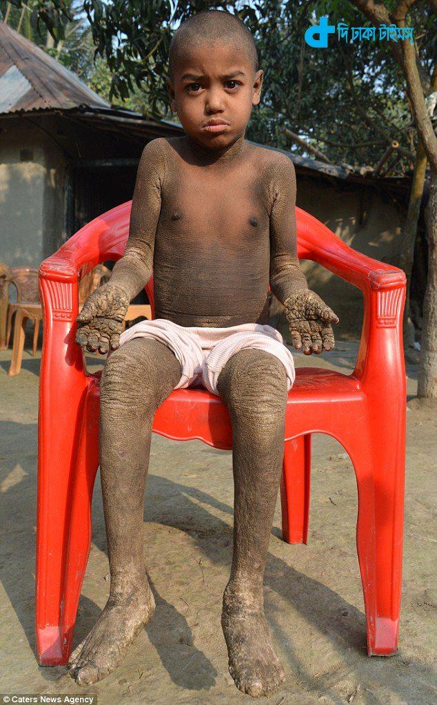 নওগাঁর ৮ বছর বয়সী এক কিশোর বিরল রোগে আক্রান্ত: পাথরে পরিণত হচ্ছে পুরো শরীর! 2