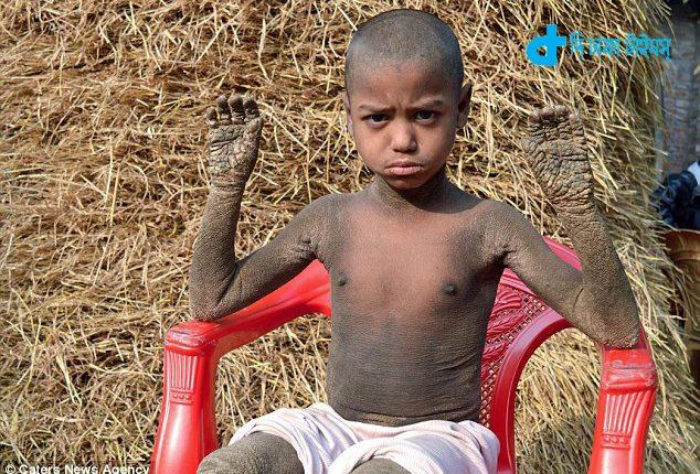 নওগাঁর ৮ বছর বয়সী এক কিশোর বিরল রোগে আক্রান্ত: পাথরে পরিণত হচ্ছে পুরো শরীর! 1