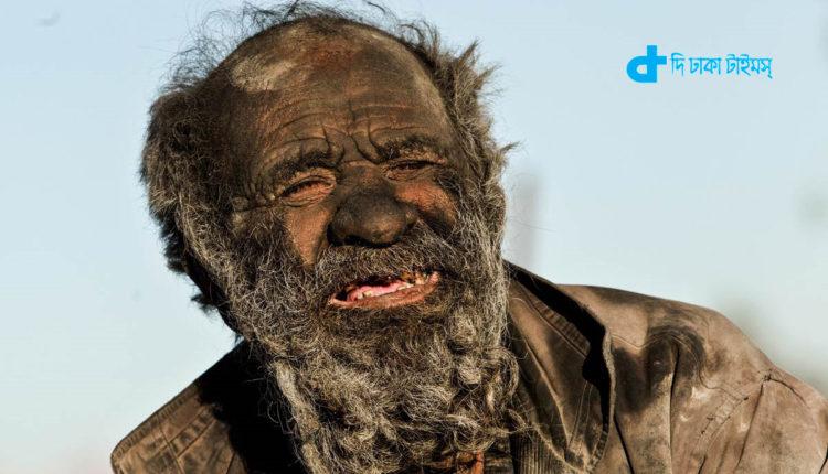 বিশ্বের 'নোংরাতম' ব্যক্তি গোসল করেননি ৬০ বছর কিন্তু কেনো? 1