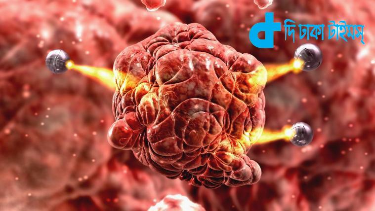 ক্যান্সার চিকিৎসায় কেমোথেরাপির পরিবর্তে নতুন অস্ত্র ন্যানোটেক 1